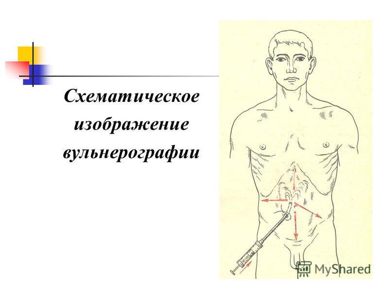 Схематическое изображение вульнерографии