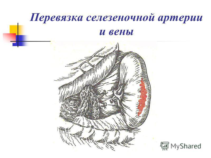 Перевязка селезеночной артерии и вены