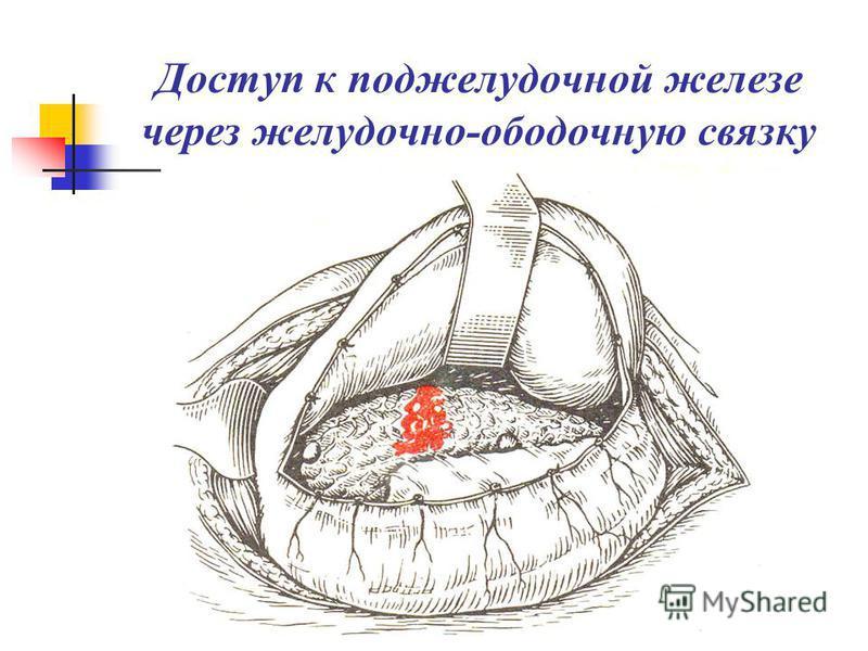 Доступ к поджелудочной железе через желудочно-ободочную связку