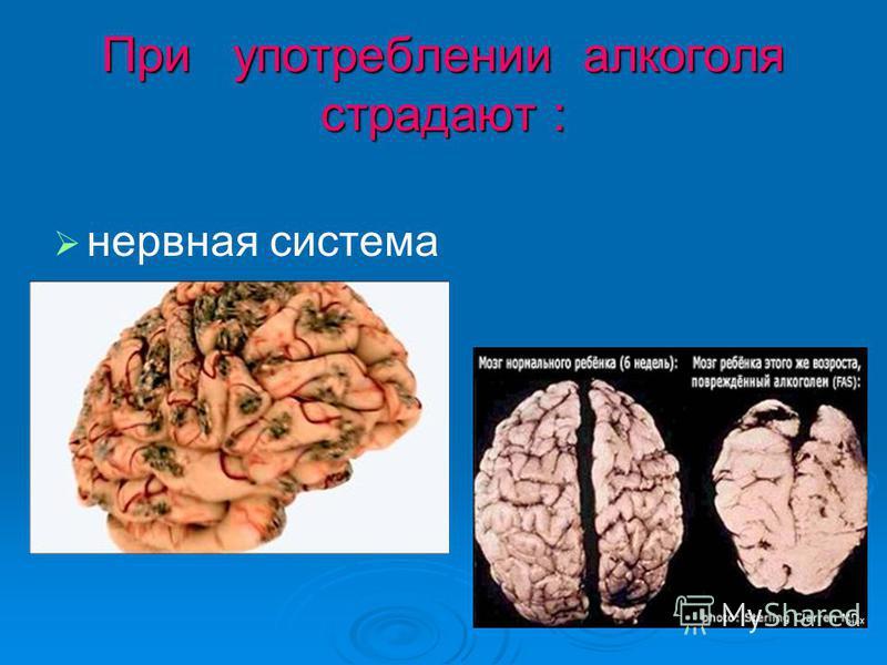 При употреблении алкоголя страдают : нервная система