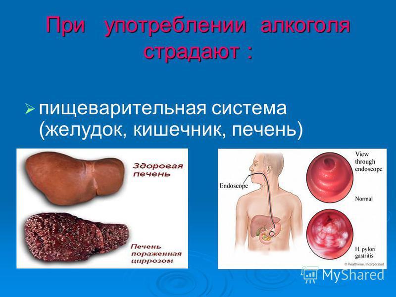 При употреблении алкоголя страдают : пищеварительная система (желудок, кишечник, печень)