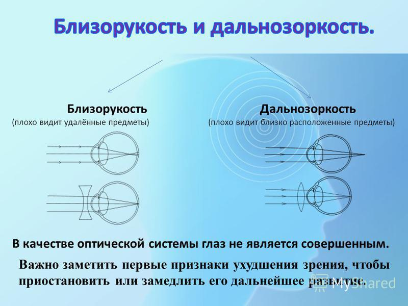 Близорукость (плохо видит удалённые предметы) Дальнозоркость (плохо видит близко расположенные предметы) В качестве оптической системы глаз не является совершенным. Важно заметить первые признаки ухудшения зрения, чтобы приостановить или замедлить ег