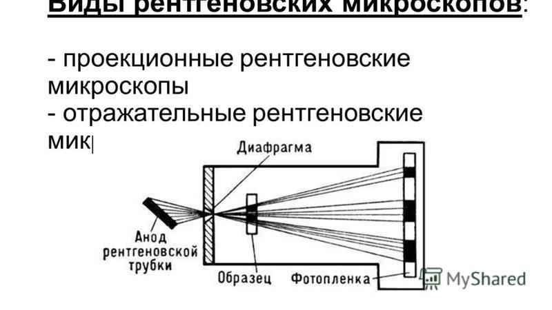 Виды рентгеновских микроскоппов : - проекционные рентгеновские микроскоппы - отражательные рентгеновские микроскоппы