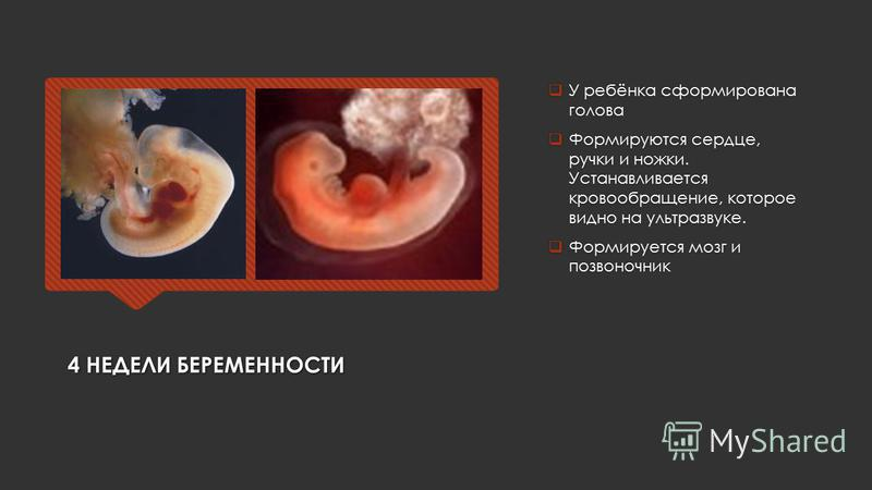 4 НЕДЕЛИ БЕРЕМЕННОСТИ У ребёнка сформирована голова Формируются сердце, ручки и ножки. Устанавливается кровообращение, которое видно на ультразвуке. Формируется мозг и позвоночник