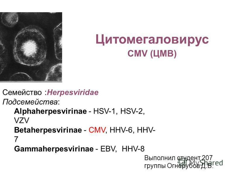 Цитомегаловирус CMV (ЦМВ) Семейство :Herpesviridae Подсемейства: Alphaherpesvirinae - HSV-1, HSV-2, VZV Betaherpesvirinae - CMV, HHV-6, HHV- 7 Gammaherpesvirinae - EBV, HHV-8 Выполнил студент 207 группы Огнерубов Д.В.