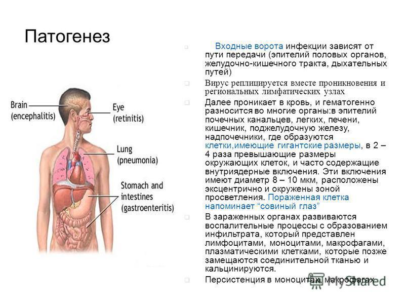Патогенез Входные ворота инфекции зависят от пути передачи (эпителий половых органов, желудочно-кишечного тракта, дыхательных путей) Вирус реплицируется вместе проникновения и региональных лимфатических узлах Далее проникает в кровь, и гематогенно ра