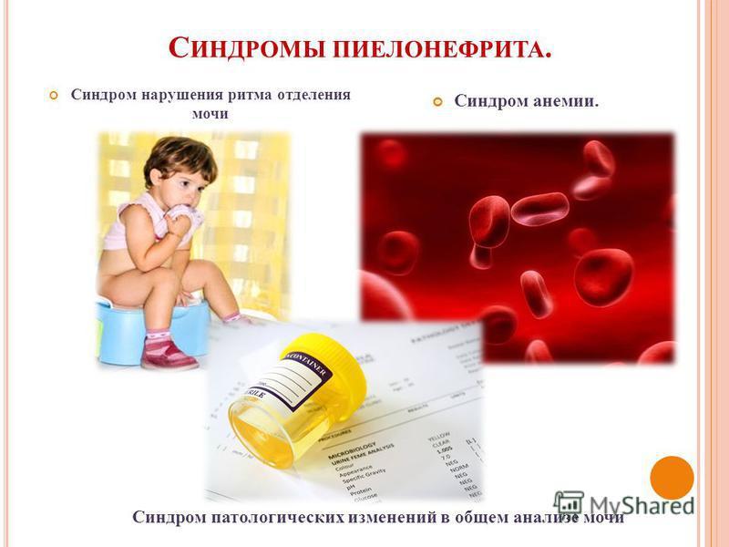 С ИНДРОМЫ ПИЕЛОНЕФРИТА. Синдром нарушения ритма отделения мочи Синдром анемии. Синдром патологических изменений в общем анализе мочи