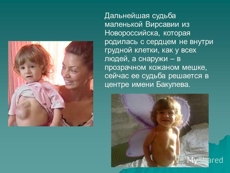 Дальнейшая судьба маленькой Вирсавии из Новороссийска, которая родилась с сердцем не внутри грудной клетки, как у всех людей, а снаружи – в прозрачном кожаном мешке, сейчас ее судьба решается в центре имени Бакулева.