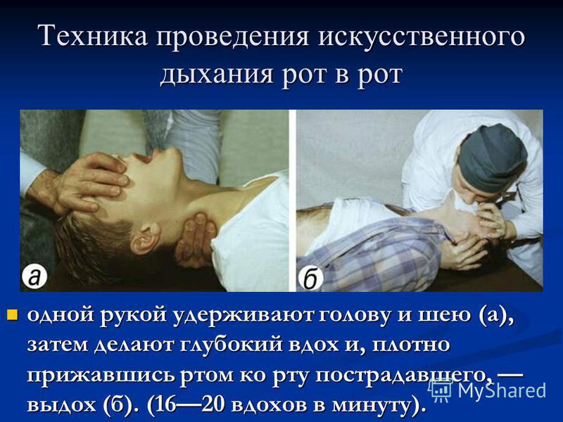 Техника проведения искусственного дыхания рот в рот одной рукой удерживают голову и шею (а), затем делают глубокий вдох и, плотно прижавшись ртом ко рту пострадавшего, выдох (б). (1620 вдохов в минуту). одной рукой удерживают голову и шею (а), затем