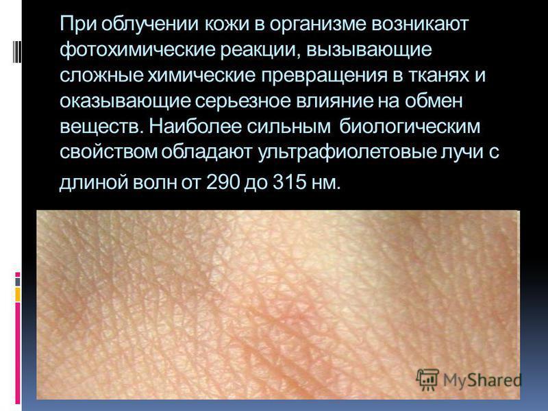 При облучении кожи в организме возникают фотохимические реакции, вызывающие сложные химические превращения в тканях и оказывающие серьезное влияние на обмен веществ. Наиболее сильным биологическим свойством обладают ультрафиолетовые лучи с длиной вол