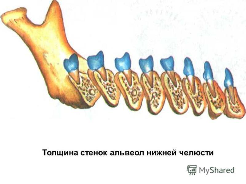 Толщина стенок альвеол нижней челюсти