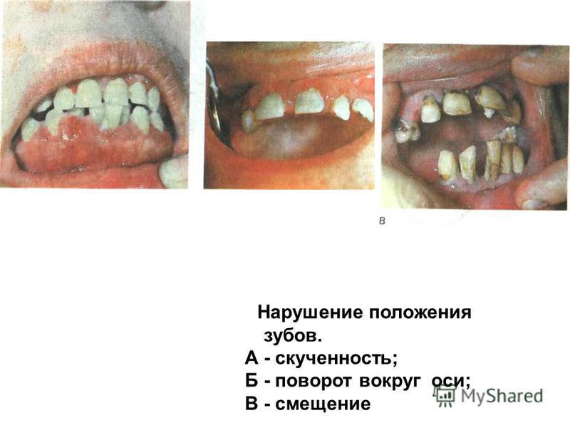 Нарушение положения зубов. А - скученность; Б - поворот вокруг оси; В - смещение