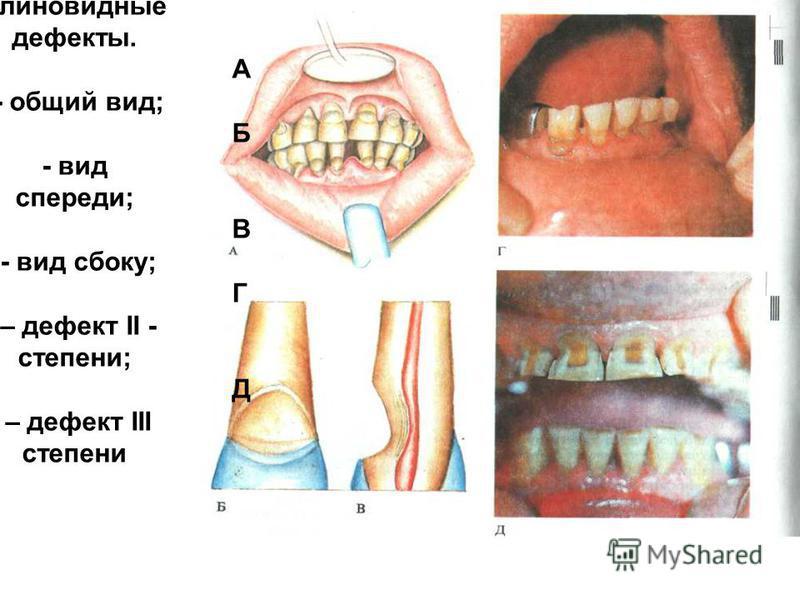 К Клиновидные дефекты. А - общий вид; Б - вид спереди; В - вид сбоку; Г – дефект II - степени; Д – дефект III степени
