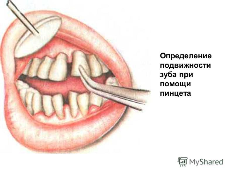Определение подвижности зуба при помощи пинцета