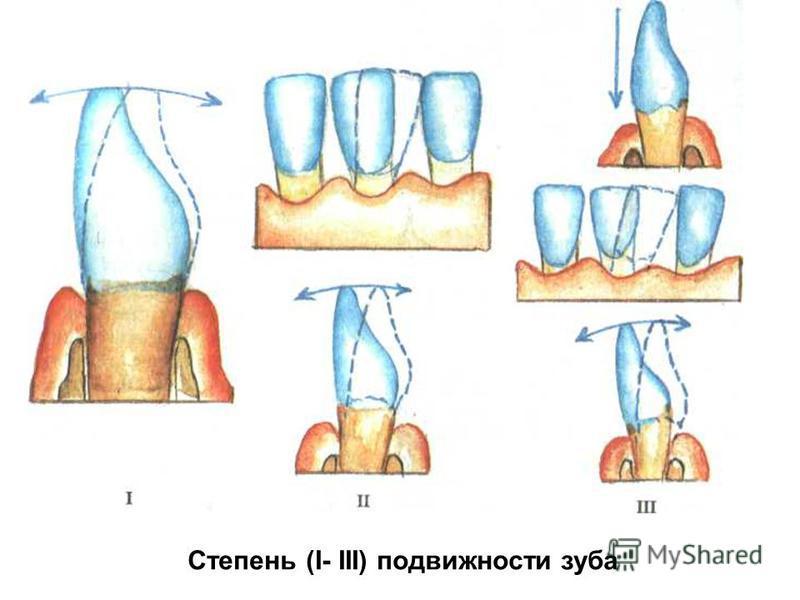 Степень (I- III) подвижности зуба