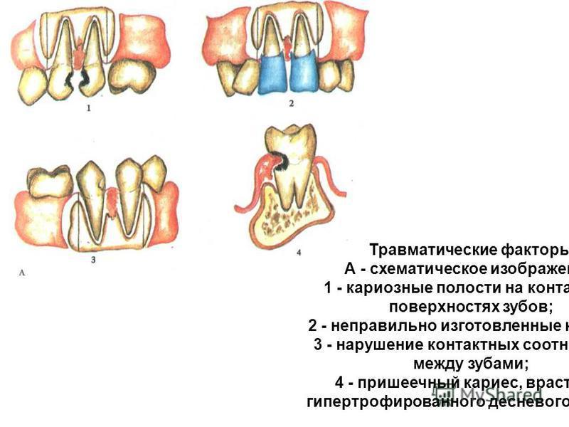 Травматические факторы. А - схематическое изображение: 1 - кариозные полости на контактных поверхностях зубов; 2 - неправильно изготовленные коронки; 3 - нарушение контактных соотношений между зубами; 4 - пришеечный кариес, врастание гипертрофированн
