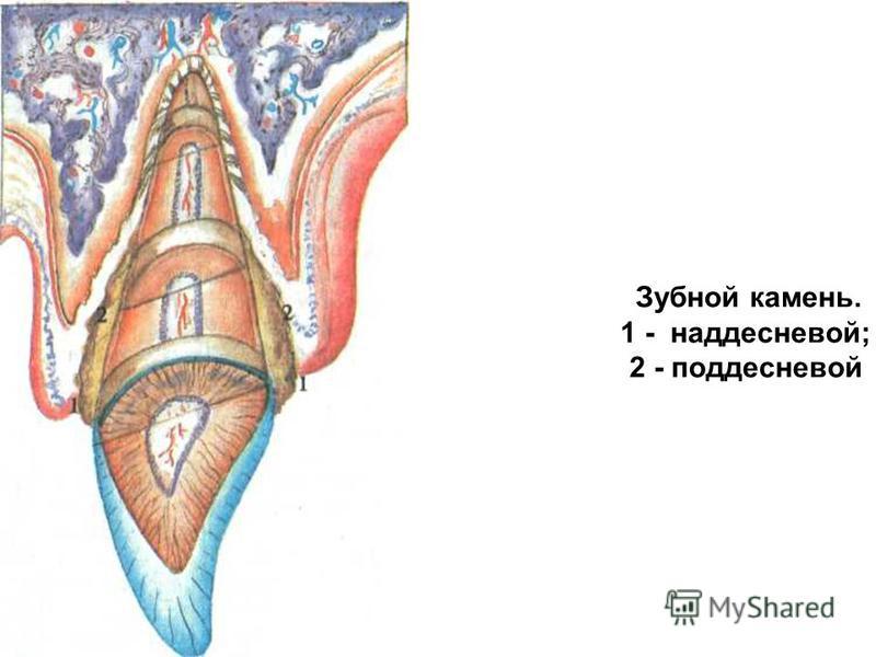 Зубной камень. 1 - наддесневой; 2 - поддесневой