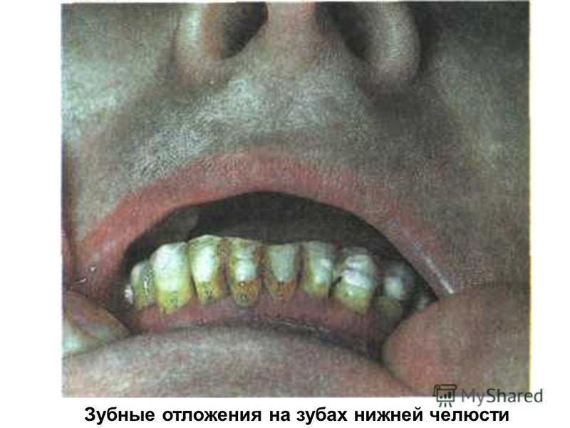 Зубные отложения на зубах нижней челюсти