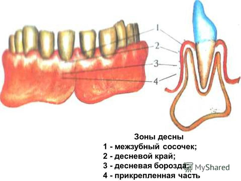 Зоны десны 1 - межзубный сосочек; 2 - десневой край; 3 - десневая борозда; 4 - прикрепленная часть
