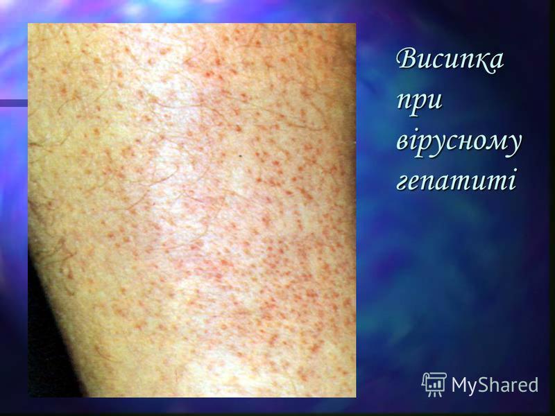 Висипка при вірусному гепатиті