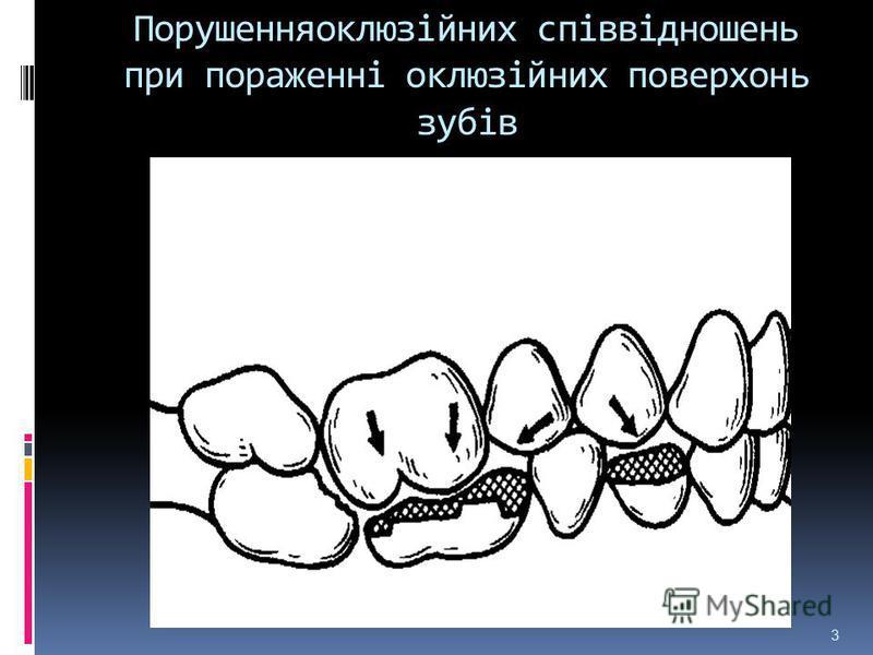 Порушенняоклюзійних співвідношень при пораженні оклюзійних поверхонь зубів 3