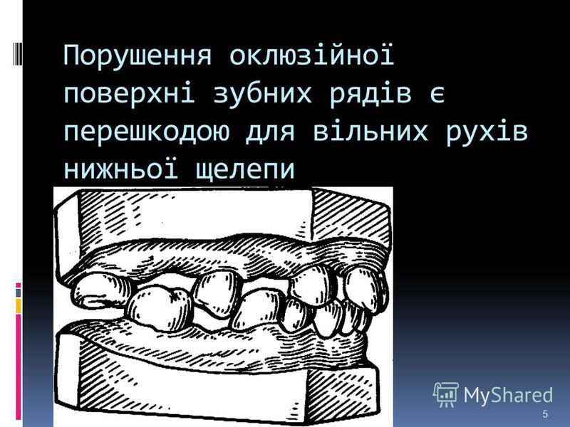 Порушення оклюзійної поверхні зубних рядів є перешкодою для вільних рухів нижньої щелепи 5