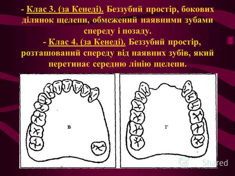- Клас 3. (за Кенеді). Беззубий простір, бокових ділянок щелепи, обмежений наявними зубами спереду і позаду. - Клас 4. (за Кенеді). Беззубий простір, розташований спереду від наявних зубів, який перетинає середню лінію щелепи.
