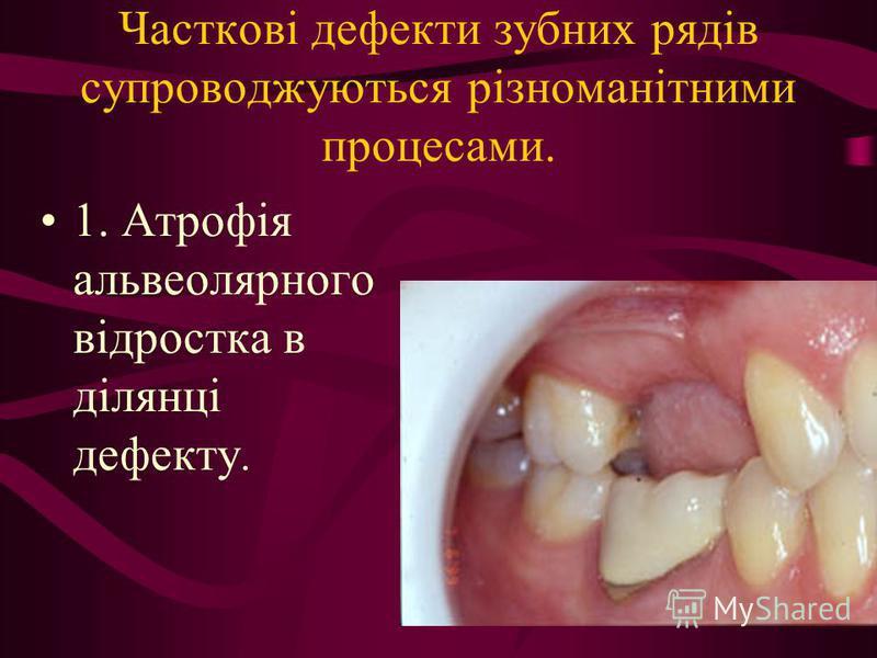 Часткові дефекти зубних рядів супроводжуються різноманітними процесами. 1. Атрофія альвеолярного відростка в ділянці дефекту.