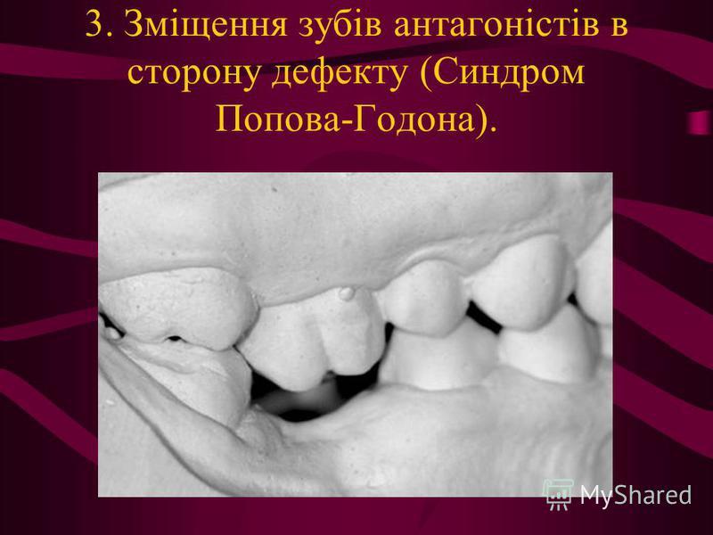 3. Зміщення зубів антагоністів в сторону дефекту (Синдром Попова-Годона).