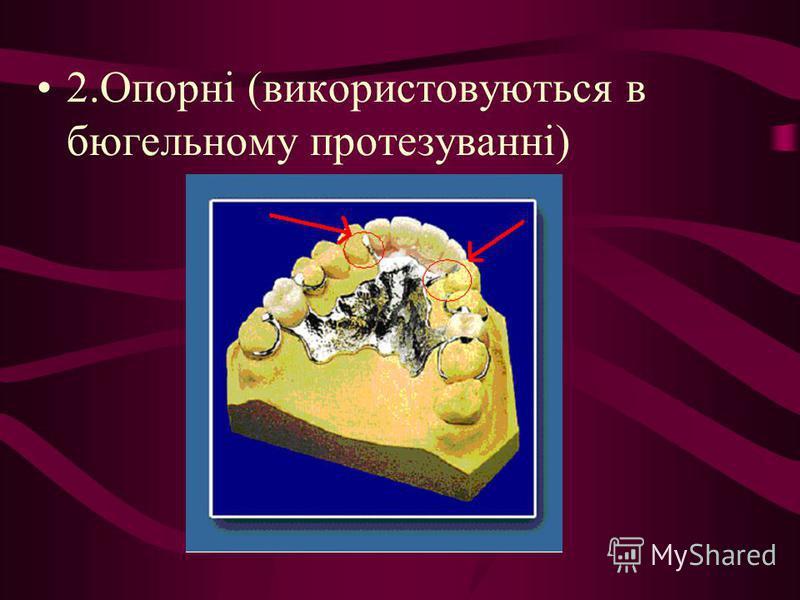 2.Опорні (використовуються в бюгельному протезуванні)