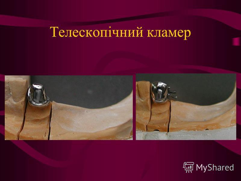 Телескопічний кламер