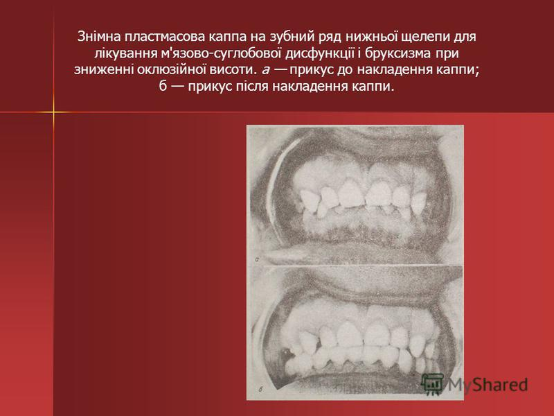 Знімна пластмасова каппа на зубний ряд нижньої щелепи для лікування м'язово-суглобової дисфункції і бруксизма при зниженні оклюзійної висоти. а прикус до накладення каппи; б прикус після накладення каппи.