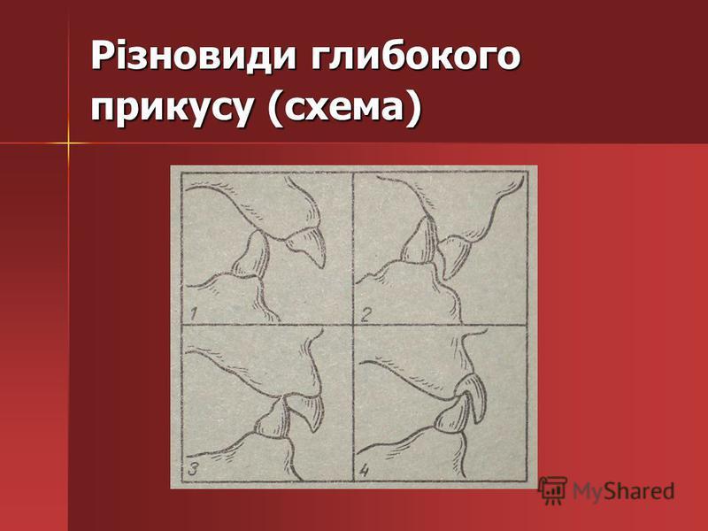 Різновиди глибокого прикусу (схема)