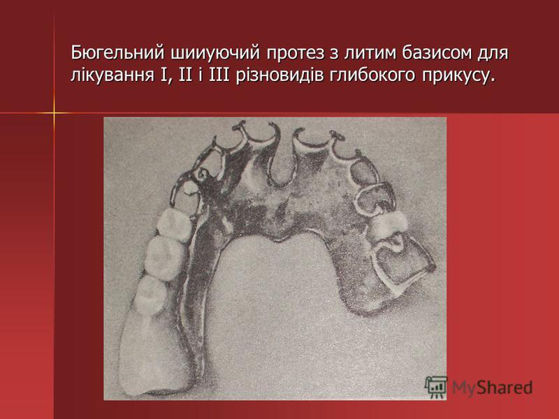 Бюгельний шииуючий протез з литим базисом для лікування I, II і III різновидів глибокого прикусу.