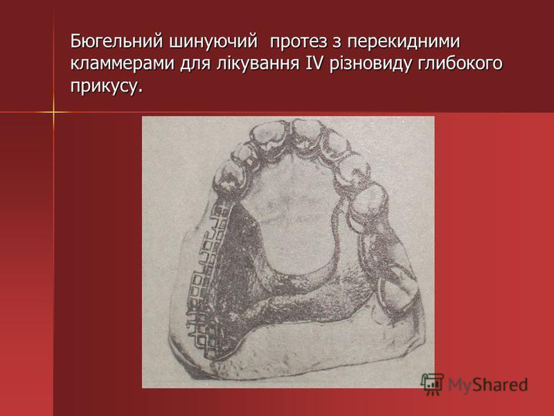 Бюгельний шинуючий протез з перекидними кламмерами для лікування IV різновиду глибокого прикусу.