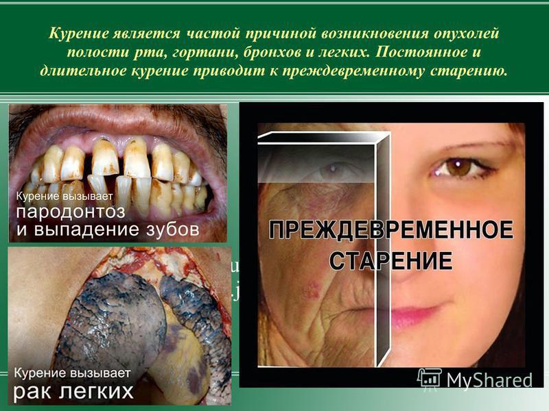 Курение является частой причиной возникновения опухолей полости рта, гортани, бронхов и легких. Постоянное и длительное курение приводит к преждевременному старению. http://www.eurolab.ua/i mg/st_img/kyr_sm3.jpg