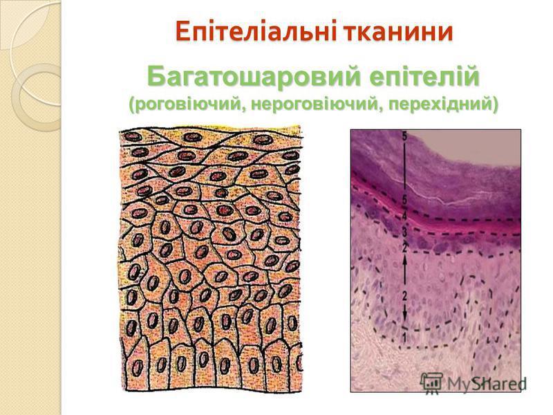 Багатошаровий епітелій (роговіючий, нероговіючий, перехідний) Епітеліальні тканини