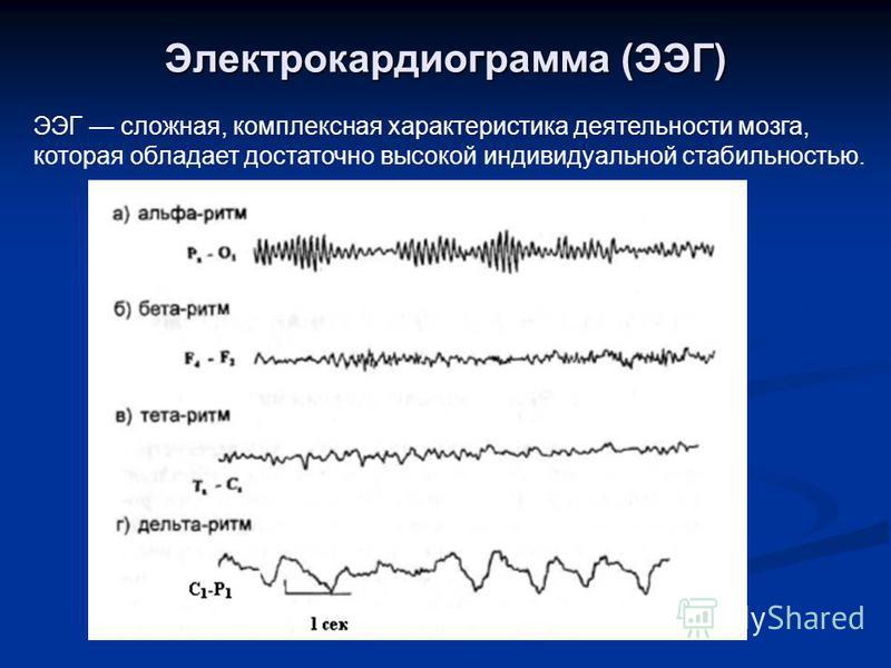Электрокардиограмма (ЭЭГ) ЭЭГ сложная, комплексная характеристика деятельности мозга, которая обладает достаточно высокой индивидуальной стабильностью.