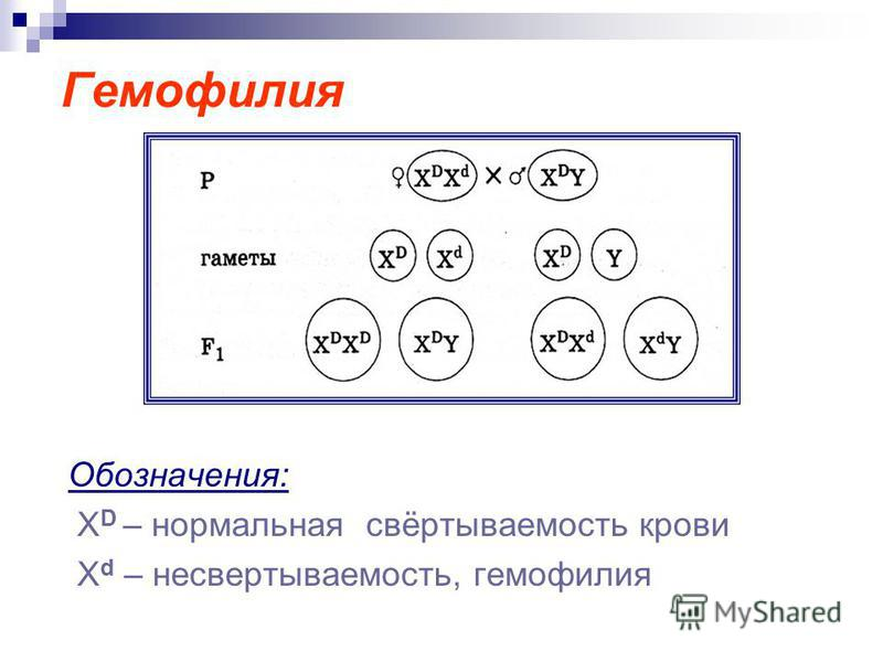 Гемофилия Обозначения: Х D – нормальная свёртываемость крови X d – несвертываемость, гемовилия