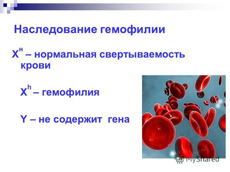 Наследование гемовилии Х н – нормальная свертываемость крови Х h – гемовилия Y – не содержит гена
