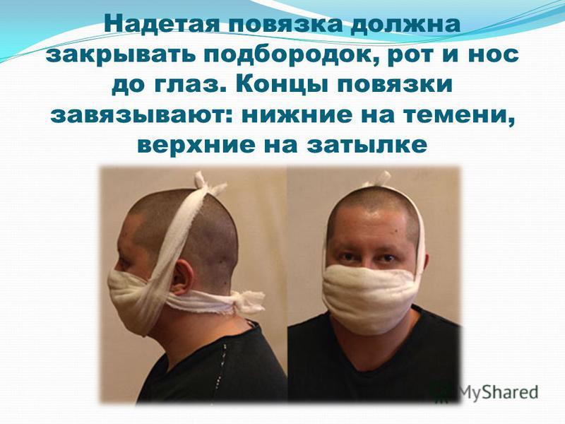 Надетая повязка должна закрывать подбородок, рот и нос до глаз. Концы повязки завязывают: нижние на темени, верхние на затылке