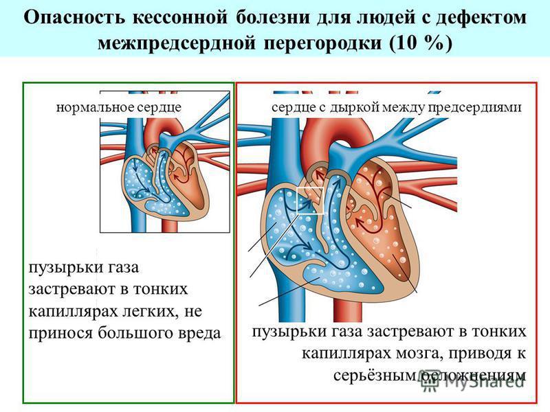 Опасность кессонной болезни для людей с дефектом межпредсердной перегородки (10 %) нормальное сердце с дыркой между предсердиями пузырьки газа застревают в тонких капиллярах легких, не принося большого вреда пузырьки газа застревают в тонких капилляр