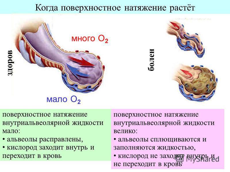 Когда поверхностное натяжение растёт много О 2 мало О 2 поверхностное натяжение внутри альвеолярной жидкости мало: альвеолы расправлены, кислород заходит внутрь и переходит в кровь поверхностное натяжение внутри альвеолярной жидкости велико: альвеолы