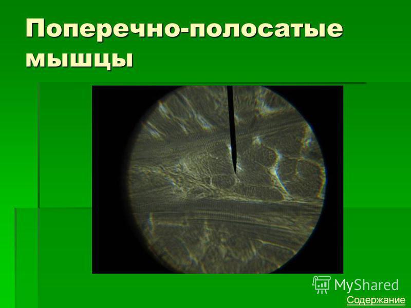 Поперечно-полосатые мышцы Содержание