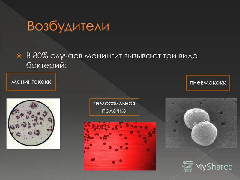 В 80% случаев менингит вызывают три вида бактерий: менингококк гемофильная палочка пневмококк