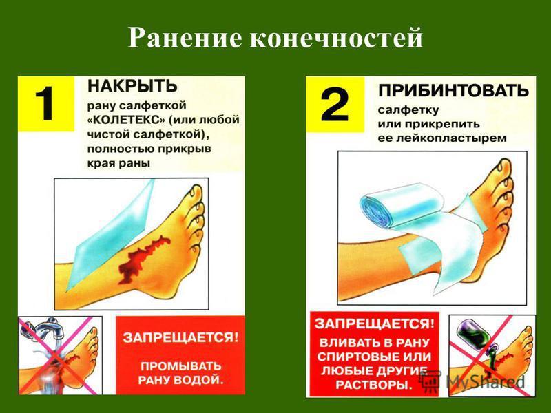 Ранение конечностей