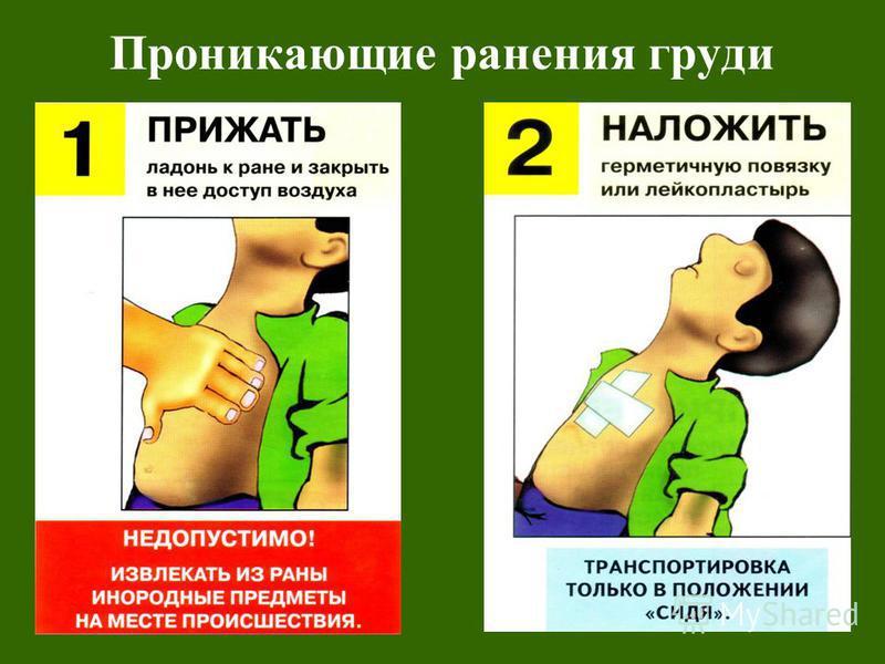Проникающие ранения груди