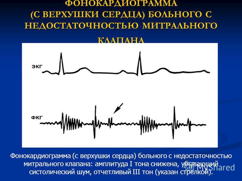ФОНОКАРДИОГРАММА (С ВЕРХУШКИ СЕРДЦА) БОЛЬНОГО С НЕДОСТАТОЧНОСТЬЮ МИТРАЛЬНОГО КЛАПАНА Фонокардиограмма (с верхушки сердца) больного с недостаточностью митрального клапана: амплитуда I тона снижена, убывающий систолический шум, отчетливый III тон (указ