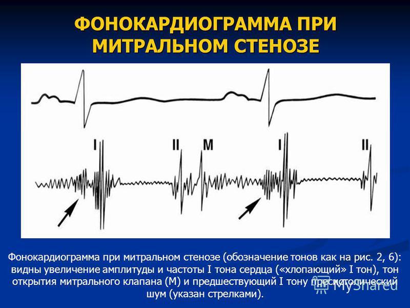 ФОНОКАРДИОГРАММА ПРИ МИТРАЛЬНОМ СТЕНОЗЕ Фонокардиограмма при митральном стенозе (обозначение тонов как на рис. 2, 6): видны увеличение амплитуды и частоты I тона сердца («хлопающий» I тон), тон открытия митрального клапана (М) и предшествующий I тону