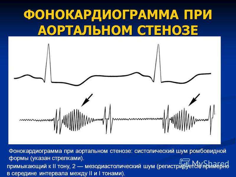 ФОНОКАРДИОГРАММА ПРИ АОРТАЛЬНОМ СТЕНОЗЕ Фонокардиограмма при аортальном стенозе: систолический шум ромбовидной формы (указан стрелками). примыкающий к II тону, 2 мезодиастолический шум (регистрируется примерно в середине интервала между II и I тонами